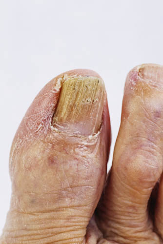 What does toenail fungus look like?