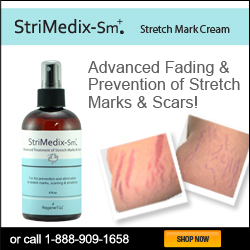 Stridmedix-SM for scars and stretchmarks