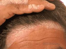 what causes scalp psoriasis