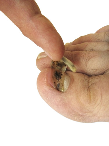 what are the dangers of toenail fungus