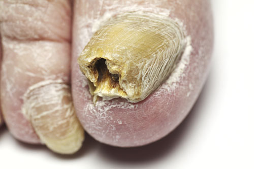 Crumbling Or Peeling Thickening And From Toenail Fungus