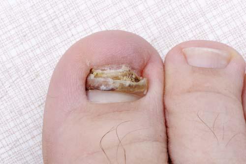 What does toenail fungus look like superficial white onychomycosis toenail fungus sciox Gallery