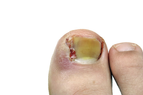 dangers of toenail fungus
