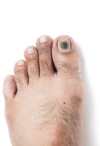 How do you Stop Early Toenail Fungus?